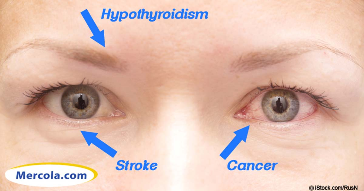 Iridology 14 Things Your Eyes Say About Your Health