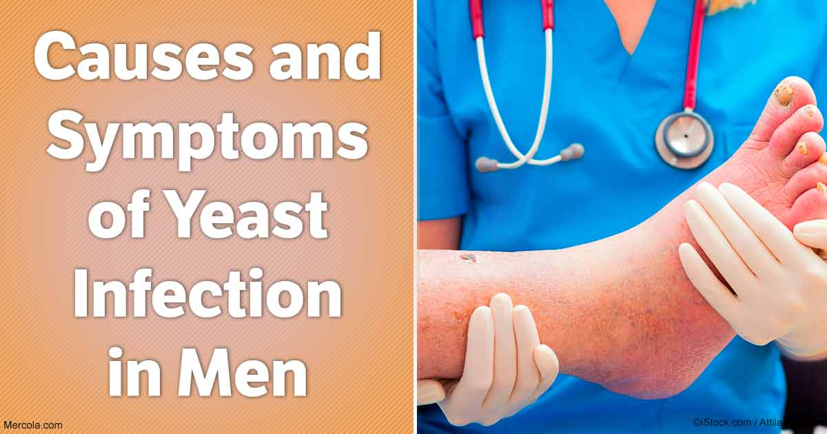 Yeast Infection Men Genital Causes and Symp...