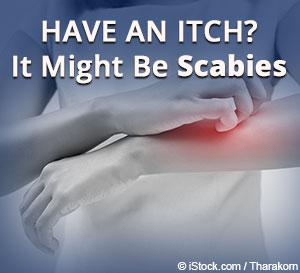 Scabies Diseases