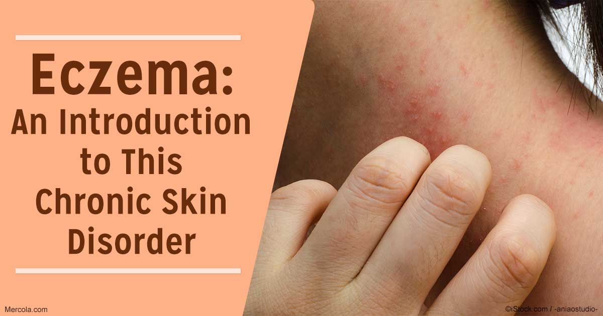 medical atpoic eczema Dr emma guttman-yassky, an investigative researcher at the icahn school of medicine at mount sinai medical center, is at the forefront of major medical advances in the understanding and treatment of eczema.