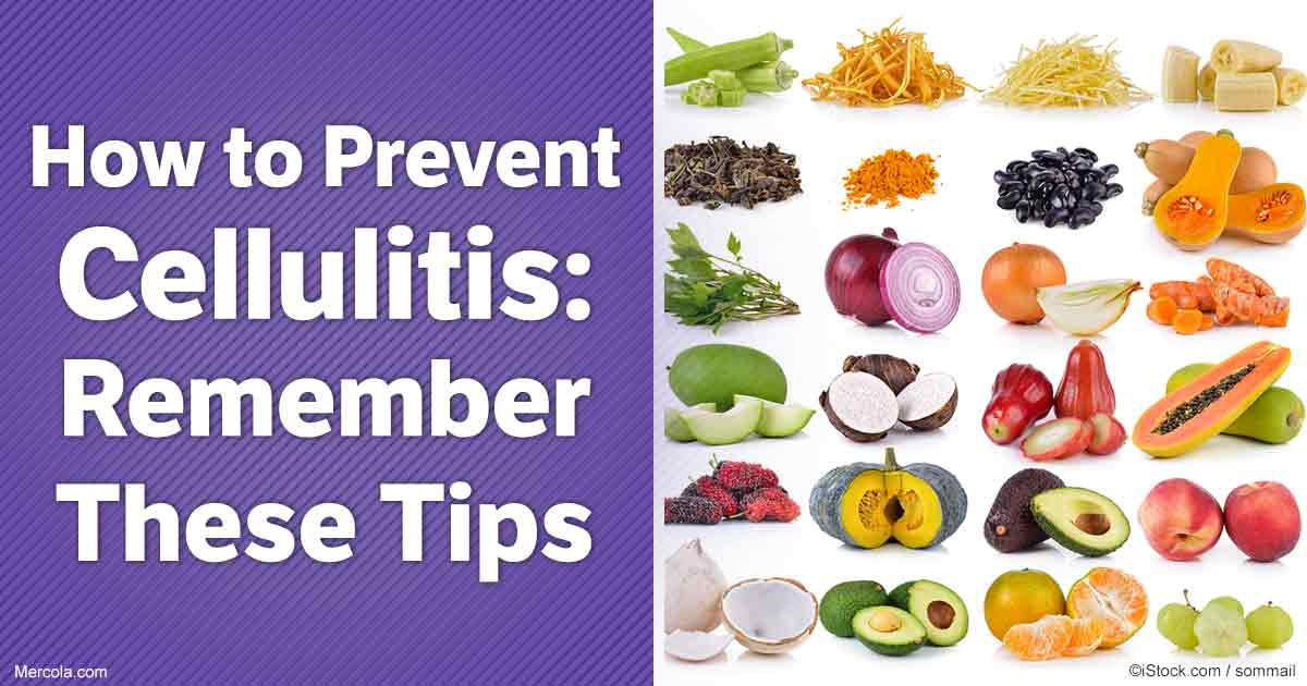 How To Prevent Cellulitis Remember These Tips