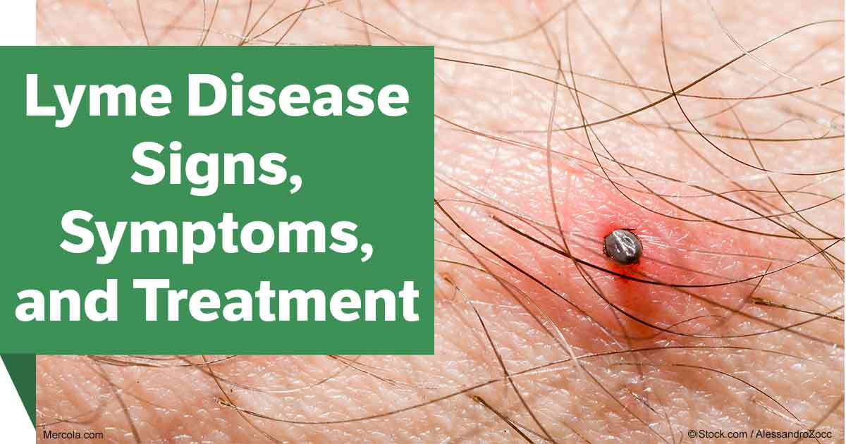 Lyme Disease Signs, Symptoms and Treatment