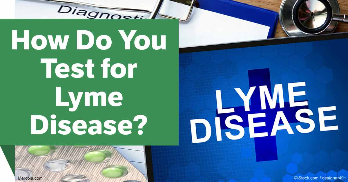 How Do You Test for Lyme Disease?