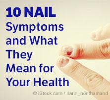 Nail Symptoms
