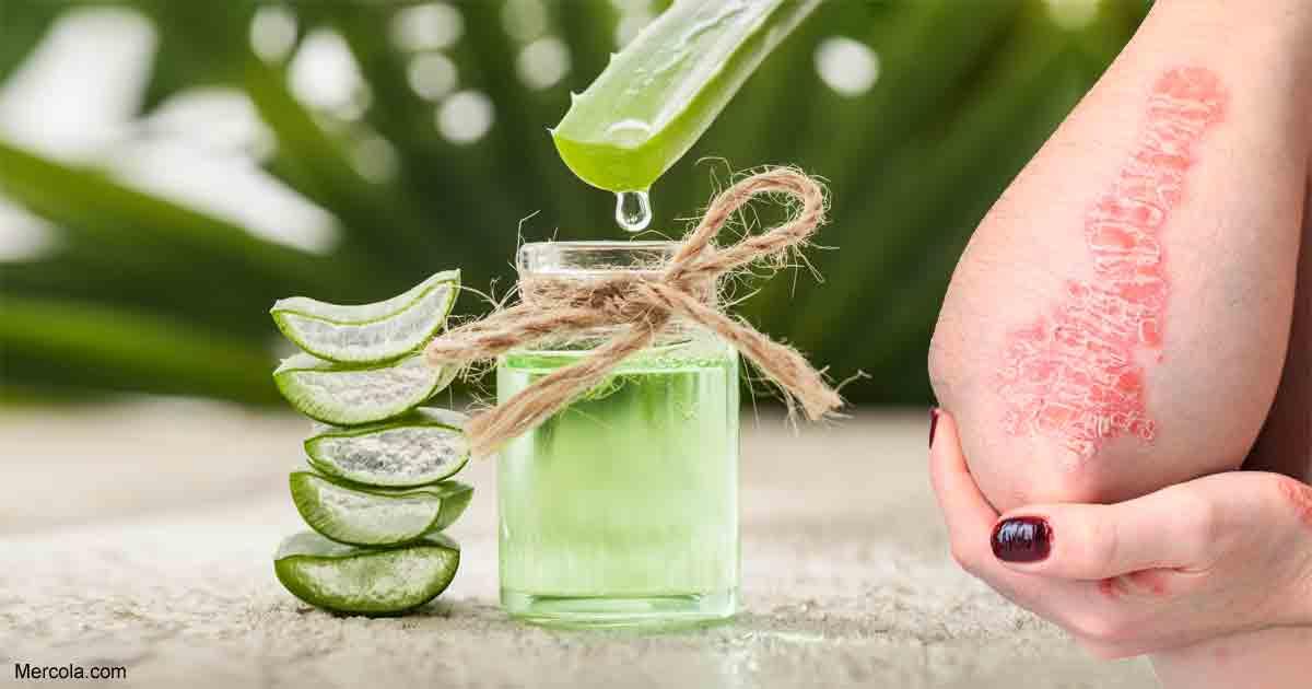 Aloe vera on psoriasis