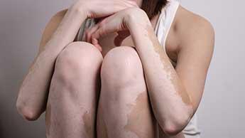 Fille Vitiligo