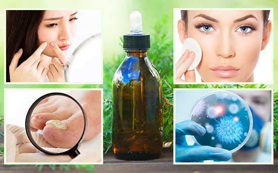 aplicações do óleo de melaleuca