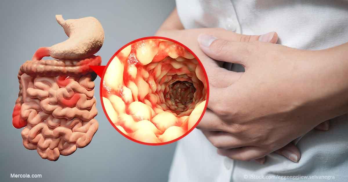 crohn's disease — an introduction, Skeleton