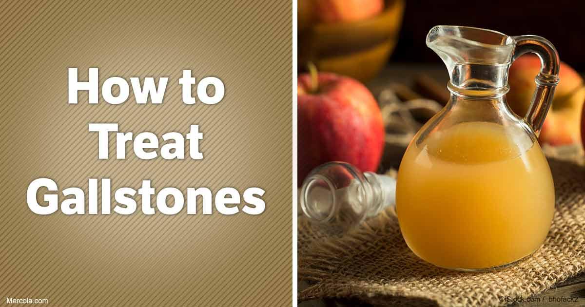 Natural Gallstones Treatment Options