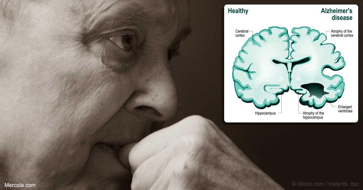 Alzheimer Milloin Hoitokotiin
