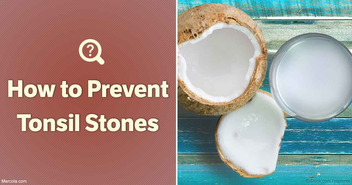 Natural Prevention Of Tonsil Stones