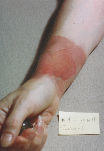 skin burn: Day 1