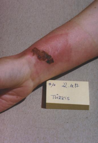 skin burn: Day 10