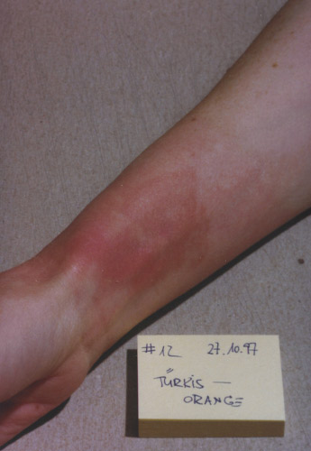 skin burn: Day 12