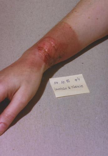 skin burn: Day 4