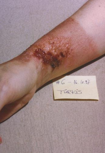 skin burn: Day 6