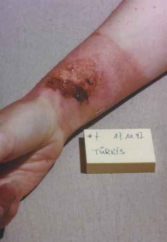 skin burn: Day 7