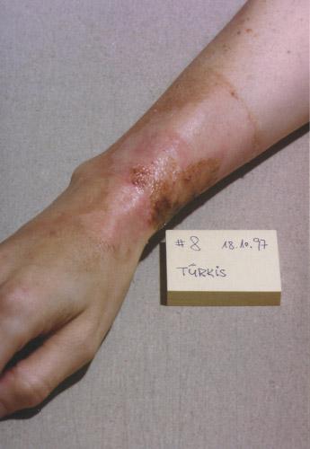 skin burn: Day 8