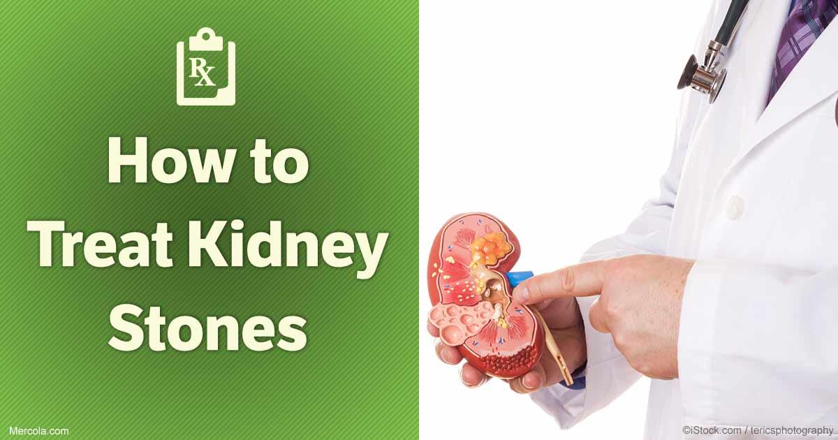how to detect kidney stones
