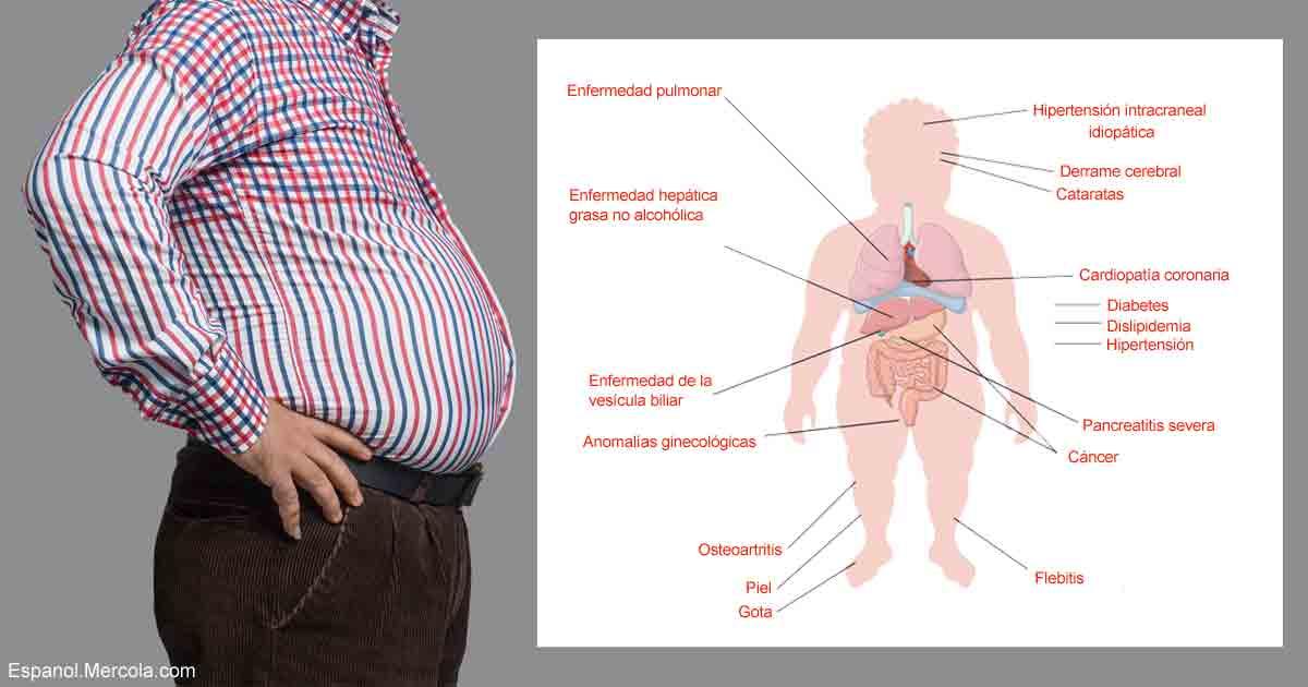Qué le Sucede a Su Cuerpo Cuando Padece Obesidad?