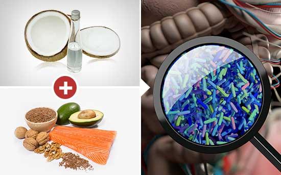 장 내 세균을 이롭게 하는 음식들