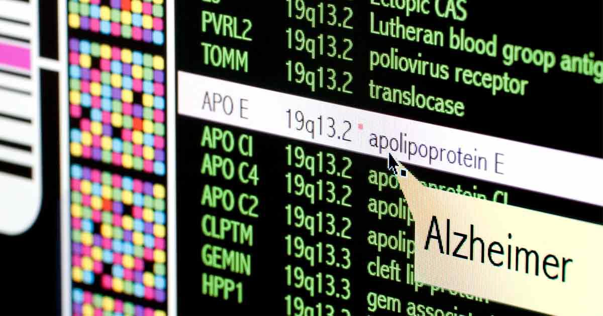 Alzheimer's Disease: New Genetic Culprit Found