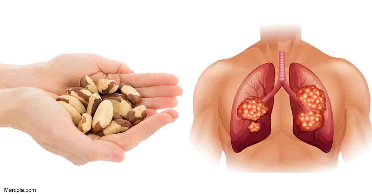 El Papel del Selenio en la Salud Celular y Prevención del Cáncer