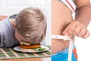 儿童期肥胖