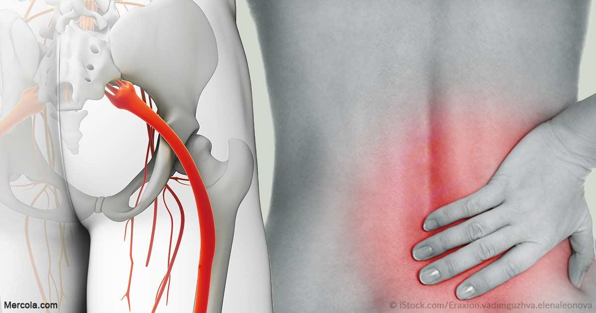 Dolor en los Glúteos: Síndrome de Piriforme