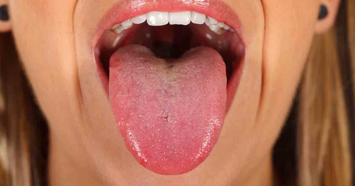 yellow geographic tongue