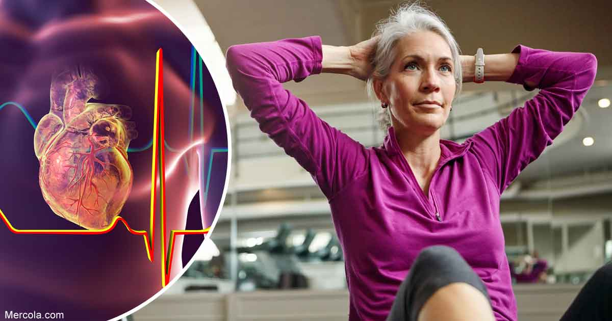 Should You Exercise After a Heart Attack?