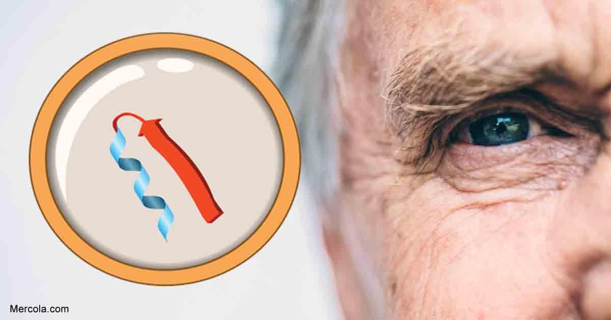 Prions in the Eyes May Indicate Brain Disease