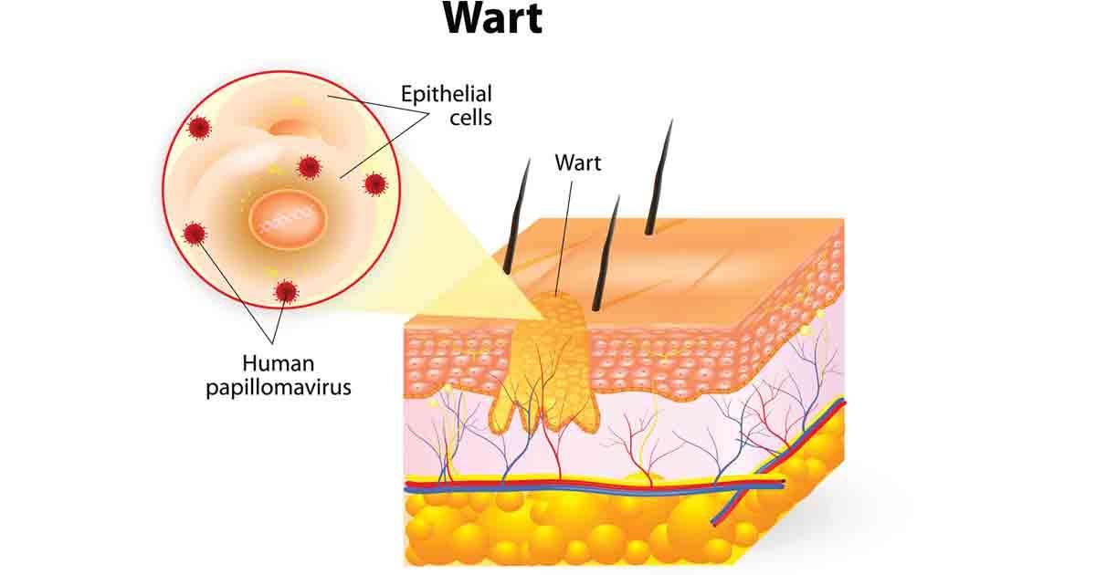 Hpv Warts And Genital Warts