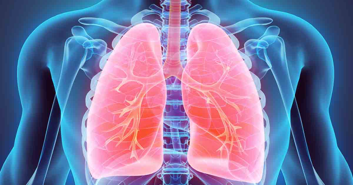 What Is Pulmonary Embolism