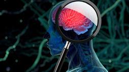 Even a Mild Head Injury Increases Your Risk for Parkinson's Disease