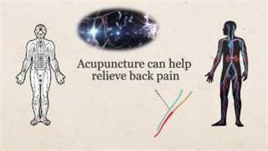 All About Acupuncture and How It Works