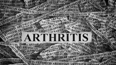Obesity Can Cause Arthritis