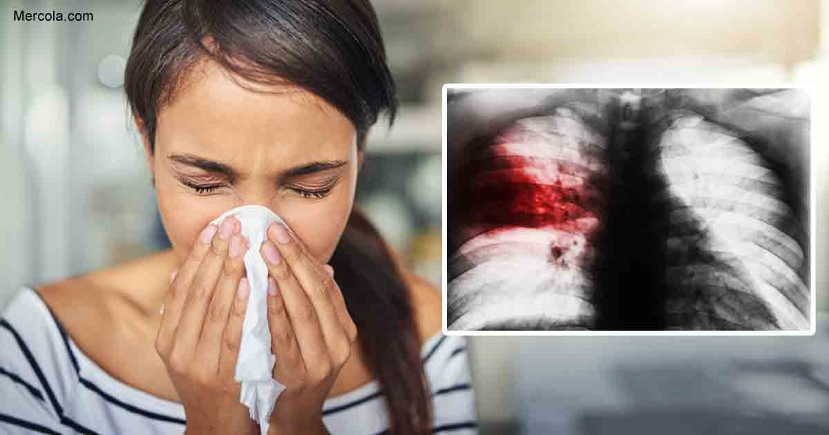 What Is Pneumonia: Things You Need to Know