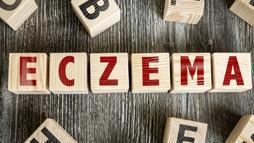 Los mejores remedios caseros para aliviar el eczema