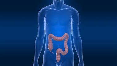 Diverticulitis: An Introduction
