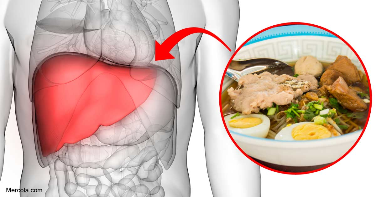 Choline Deficiency May Cause Fatty Liver Disease
