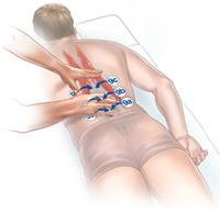 Lumbar spine PRI-moves