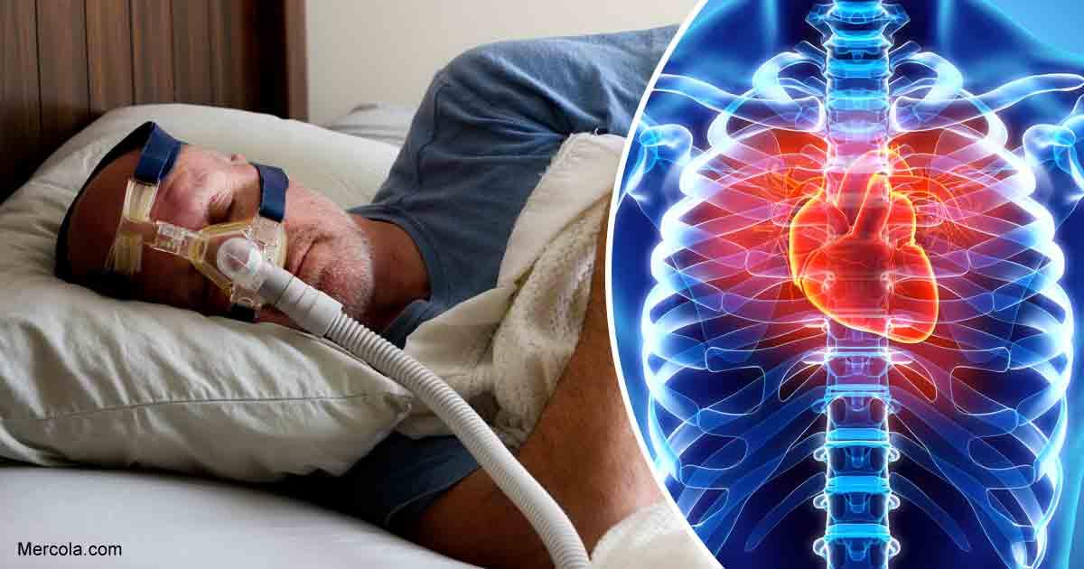Sleep Apnea May Be a Risk Factor for Heart Disease