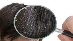 dandruff flakes in hair