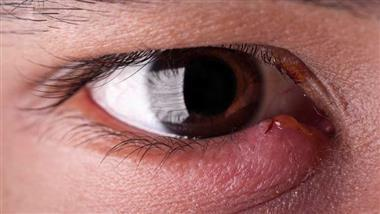 eye stye infection