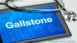 Gallstones signage
