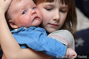 girl hugging a baby with skin allergy