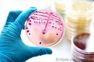 bacteria culture test