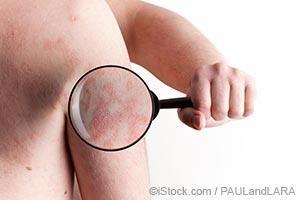 identify the type of psoriasis