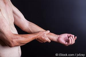 muscle weakness in the arm